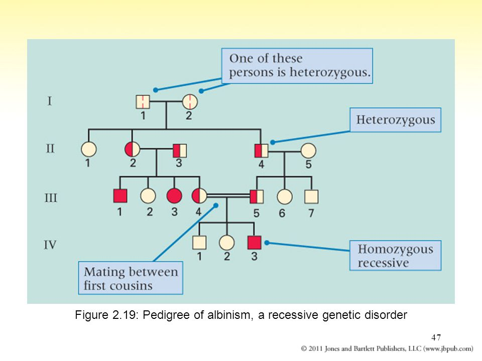 Figure 2.19: Pedigree of albinism, a recessive genetic disorder