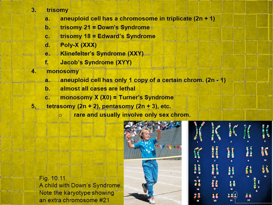 trisomy aneuploid cell has a chromosome in triplicate (2n + 1) trisomy 21 = Down s Syndrome. trisomy 18 = Edward's Syndrome.