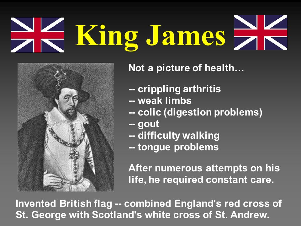 King James Not a picture of health…