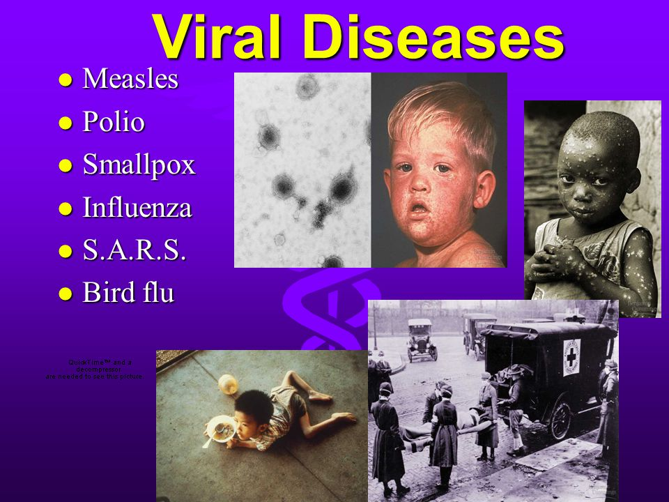 Viral Diseases Measles Polio Smallpox Influenza S.A.R.S. Bird flu