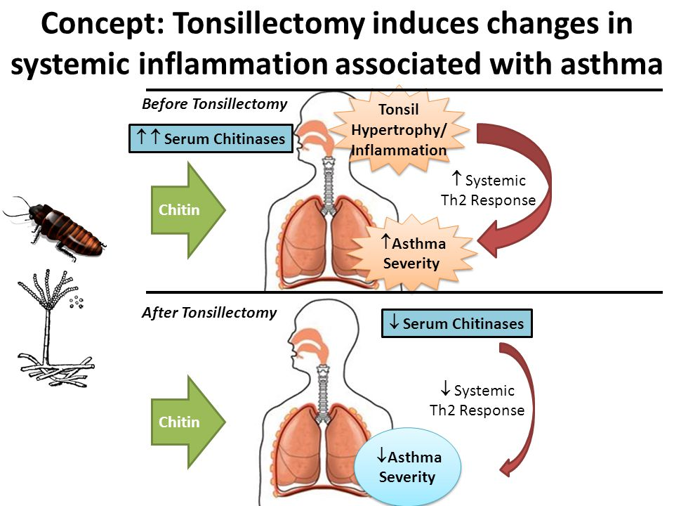 Hypertrophy/ Inflammation