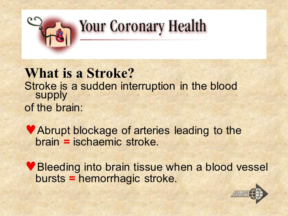 What is a Stroke Stroke is a sudden interruption in the blood supply