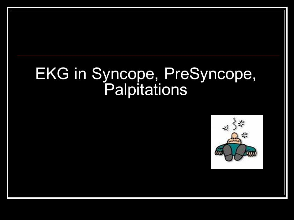 EKG in Syncope, PreSyncope, Palpitations