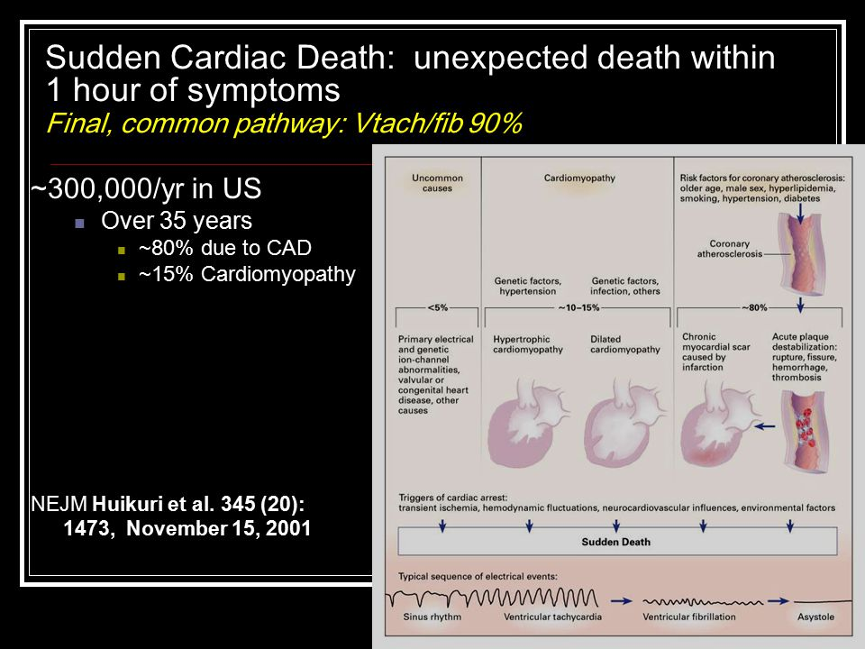 Sudden Cardiac Death: unexpected death within 1 hour of symptoms Final, common pathway: Vtach/fib 90%