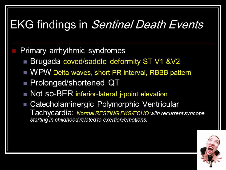 EKG findings in Sentinel Death Events