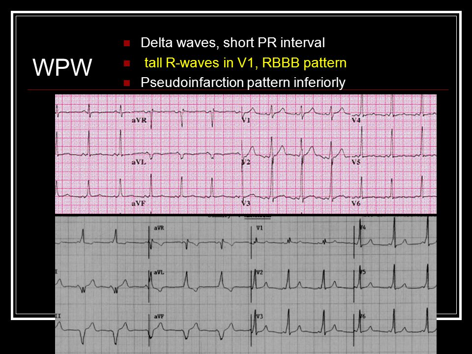 WPW Delta waves, short PR interval tall R-waves in V1, RBBB pattern