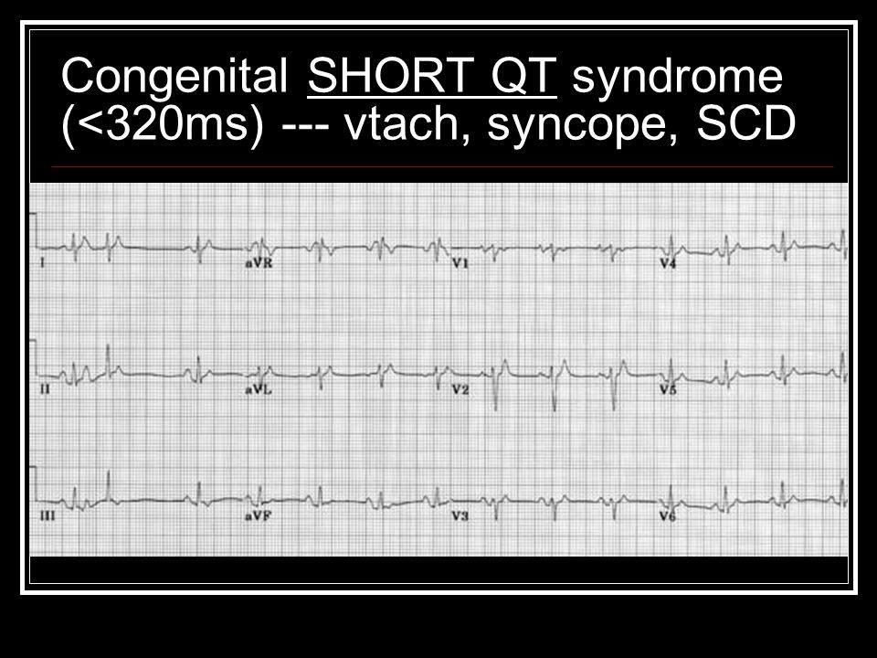 Congenital SHORT QT syndrome (<320ms) --- vtach, syncope, SCD