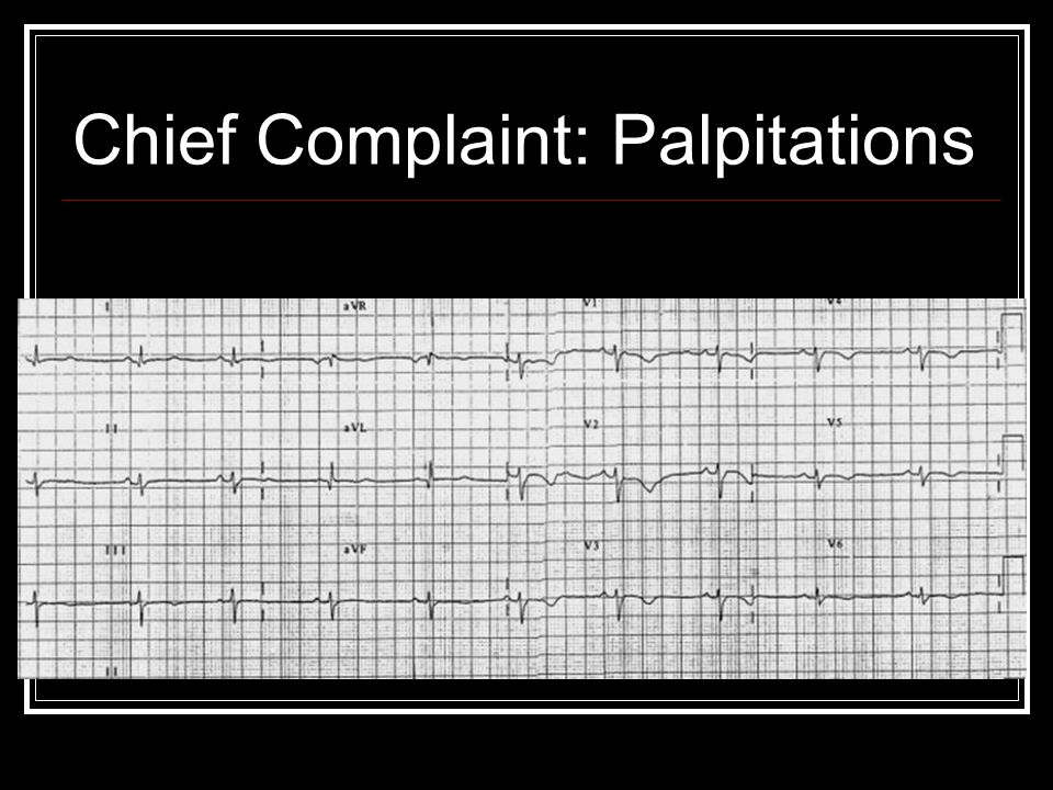Chief Complaint: Palpitations