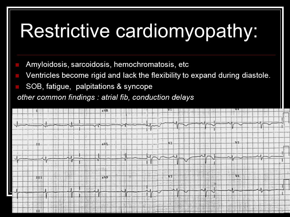 Restrictive cardiomyopathy:
