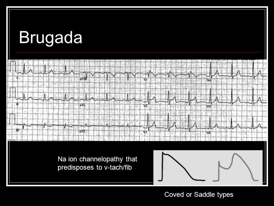 Brugada Na ion channelopathy that predisposes to v-tach/fib