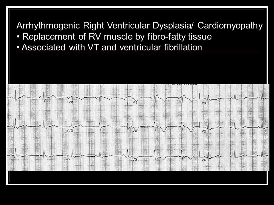 Arrhythmogenic Right Ventricular Dysplasia/ Cardiomyopathy