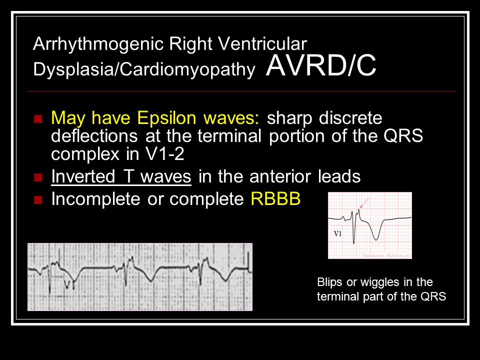 Arrhythmogenic Right Ventricular Dysplasia/Cardiomyopathy AVRD/C