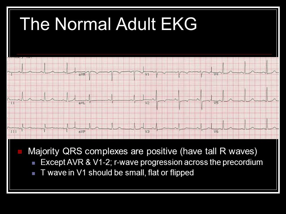 The Normal Adult EKG Majority QRS complexes are positive (have tall R waves) Except AVR & V1-2; r-wave progression across the precordium.
