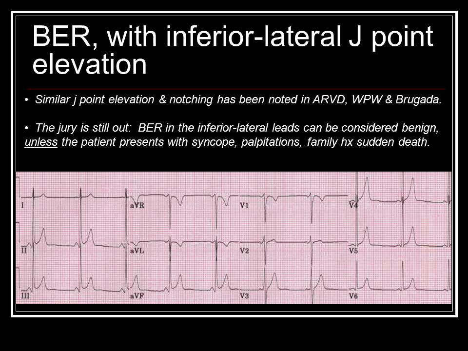 BER, with inferior-lateral J point elevation