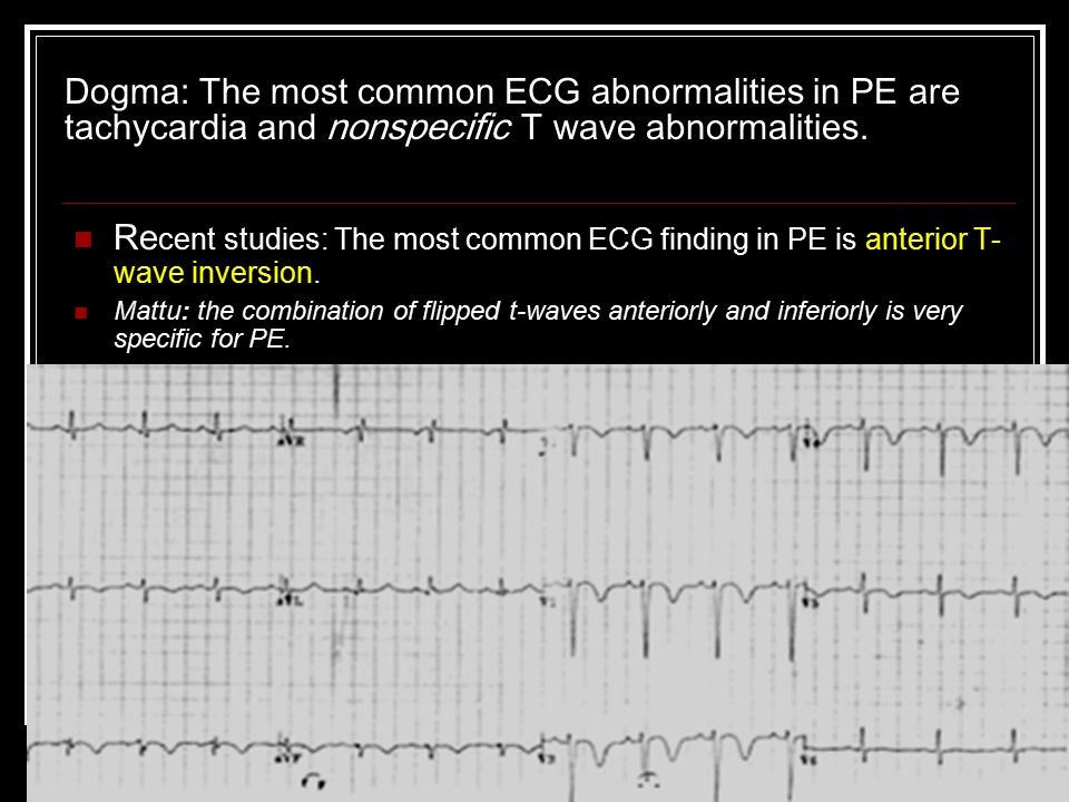 Dogma: The most common ECG abnormalities in PE are tachycardia and nonspecific T wave abnormalities.