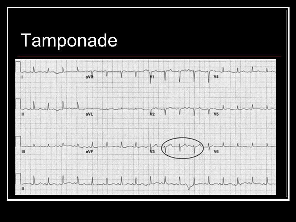 Tamponade Electrical alternans, pericardial effusion leads to low voltage