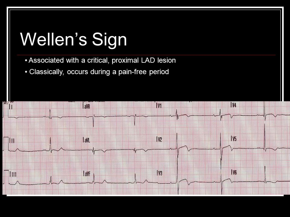 Wellen's Sign Associated with a critical, proximal LAD lesion