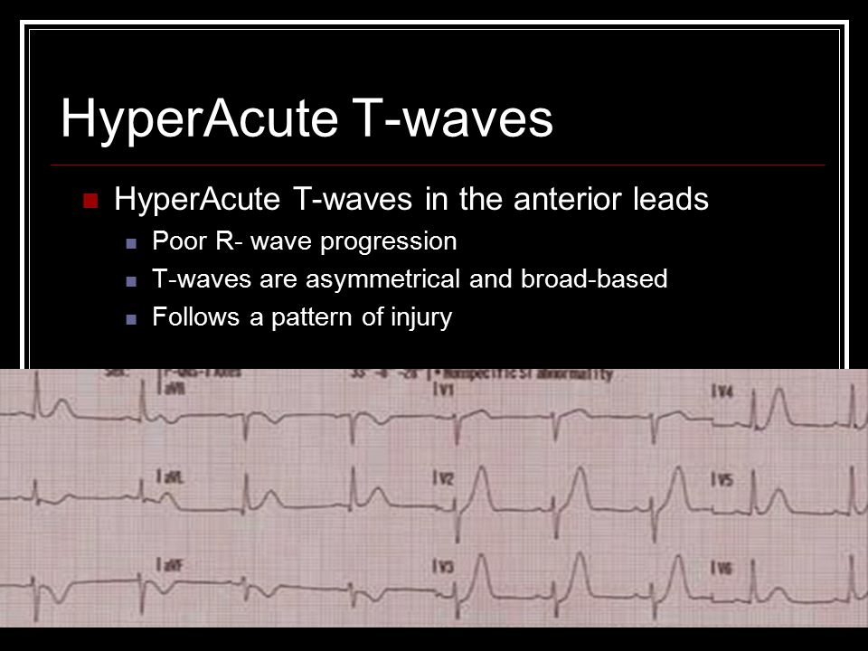 HyperAcute T-waves HyperAcute T-waves in the anterior leads
