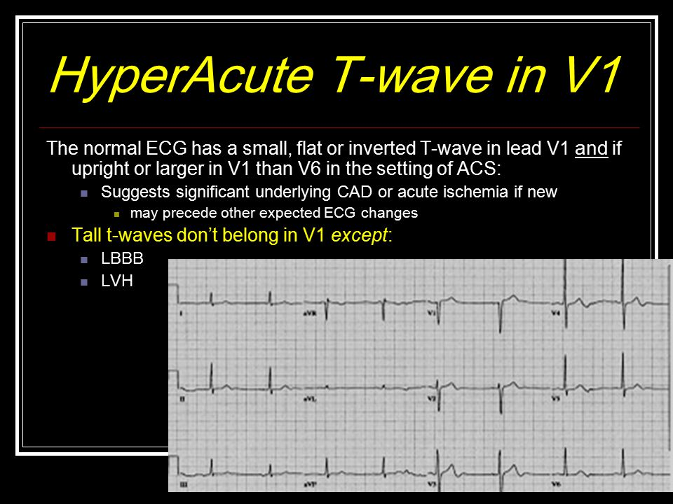 HyperAcute T-wave in V1 The normal ECG has a small, flat or inverted T-wave in lead V1 and if upright or larger in V1 than V6 in the setting of ACS: