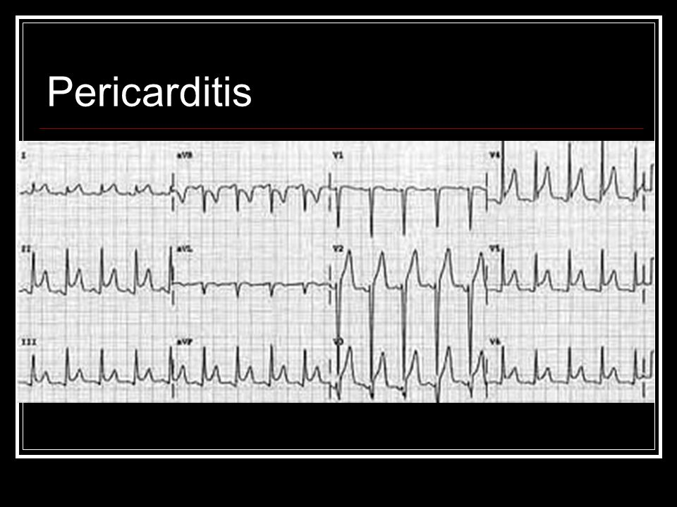 Pericarditis ST segment elevation everywhere with no flipped twave/reciprocal changes.
