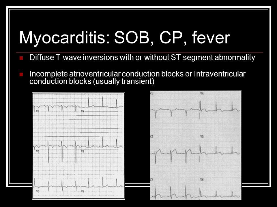 Myocarditis: SOB, CP, fever