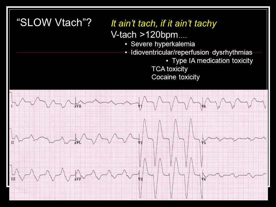 SLOW Vtach It ain't tach, if it ain't tachy V-tach >120bpm….