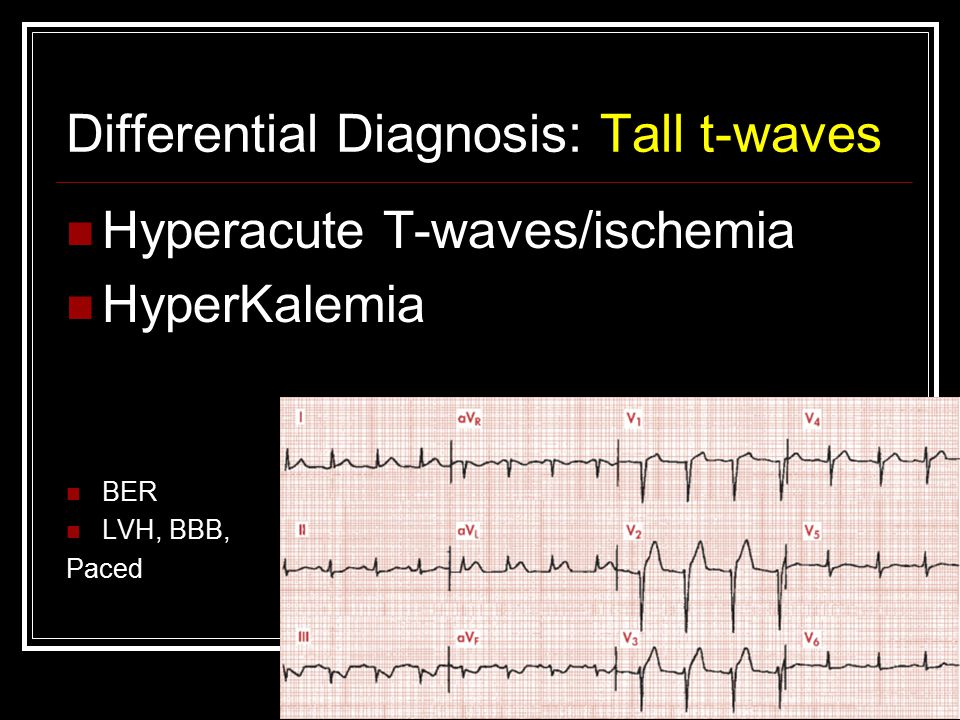 Differential Diagnosis: Tall t-waves