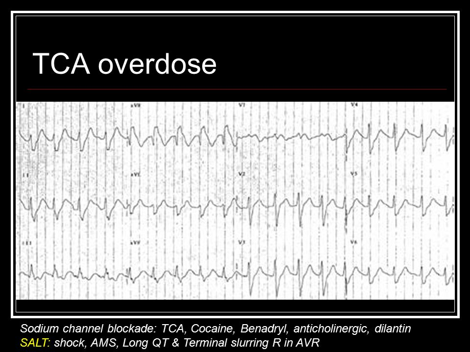 TCA overdose