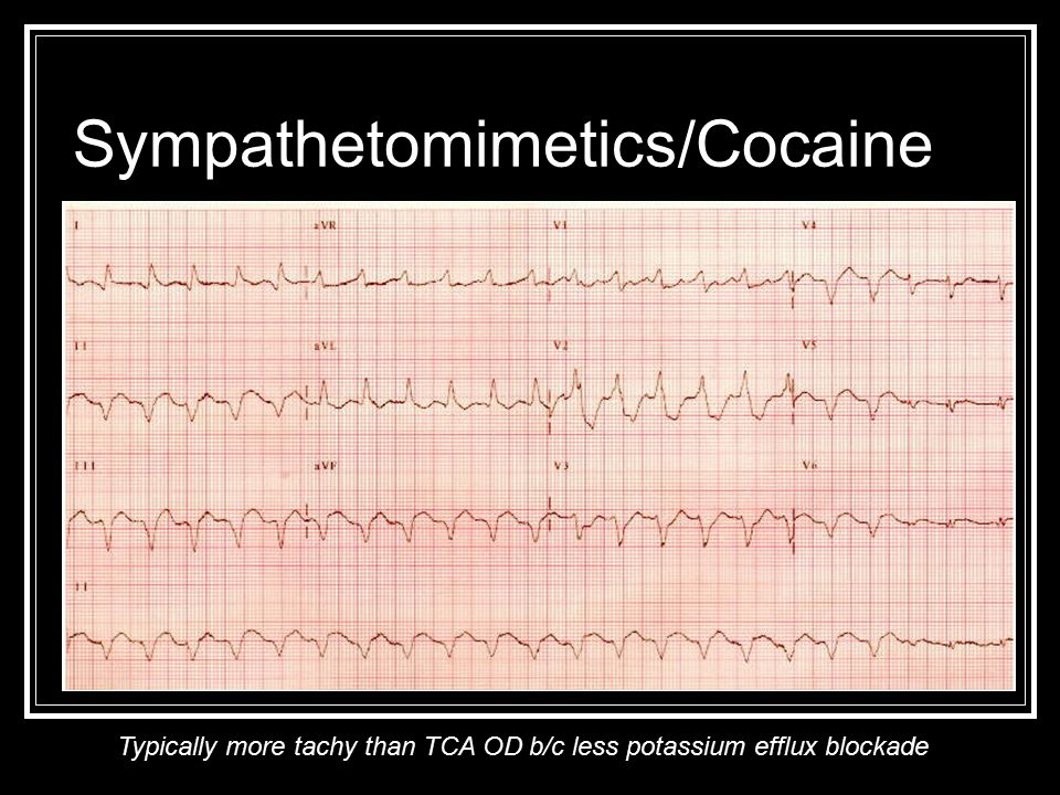 Sympathetomimetics/Cocaine