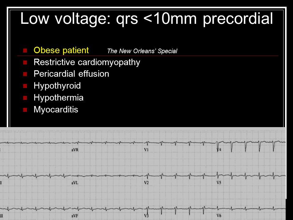 Low voltage: qrs <10mm precordial