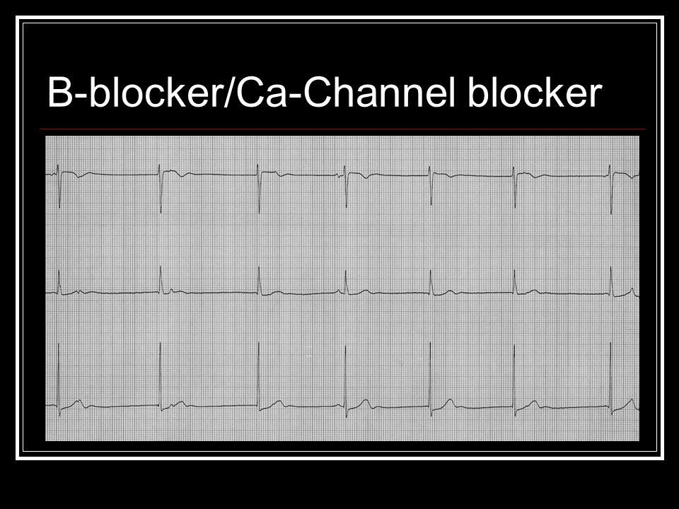 B-blocker/Ca-Channel blocker