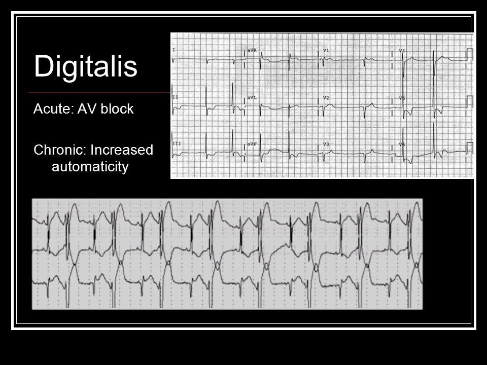 Digitalis Acute: AV block Chronic: Increased automaticity