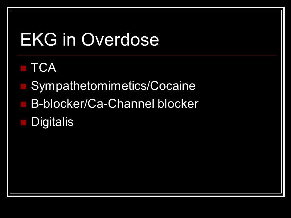 EKG in Overdose TCA Sympathetomimetics/Cocaine