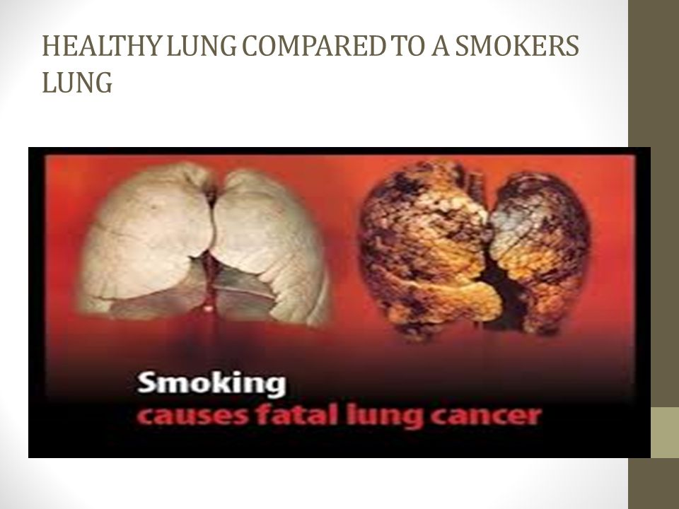 HEALTHY LUNG COMPARED TO A SMOKERS LUNG