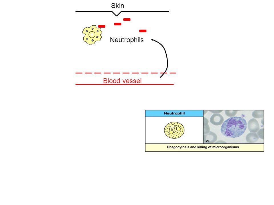 Skin Neutrophils Blood vessel