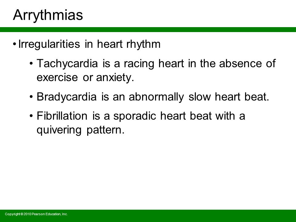 Arrythmias Irregularities in heart rhythm
