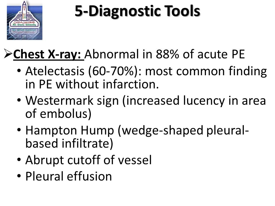 5-Diagnostic Tools Chest X-ray: Abnormal in 88% of acute PE