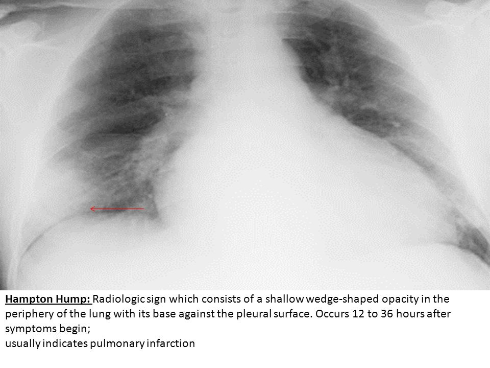Hampton Hump: Radiologic sign which consists of a shallow wedge-shaped opacity in the periphery of the lung with its base against the pleural surface. Occurs 12 to 36 hours after symptoms begin;