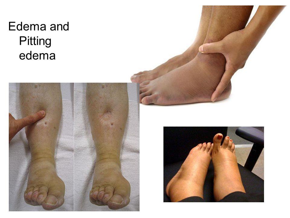 Edema and Pitting edema