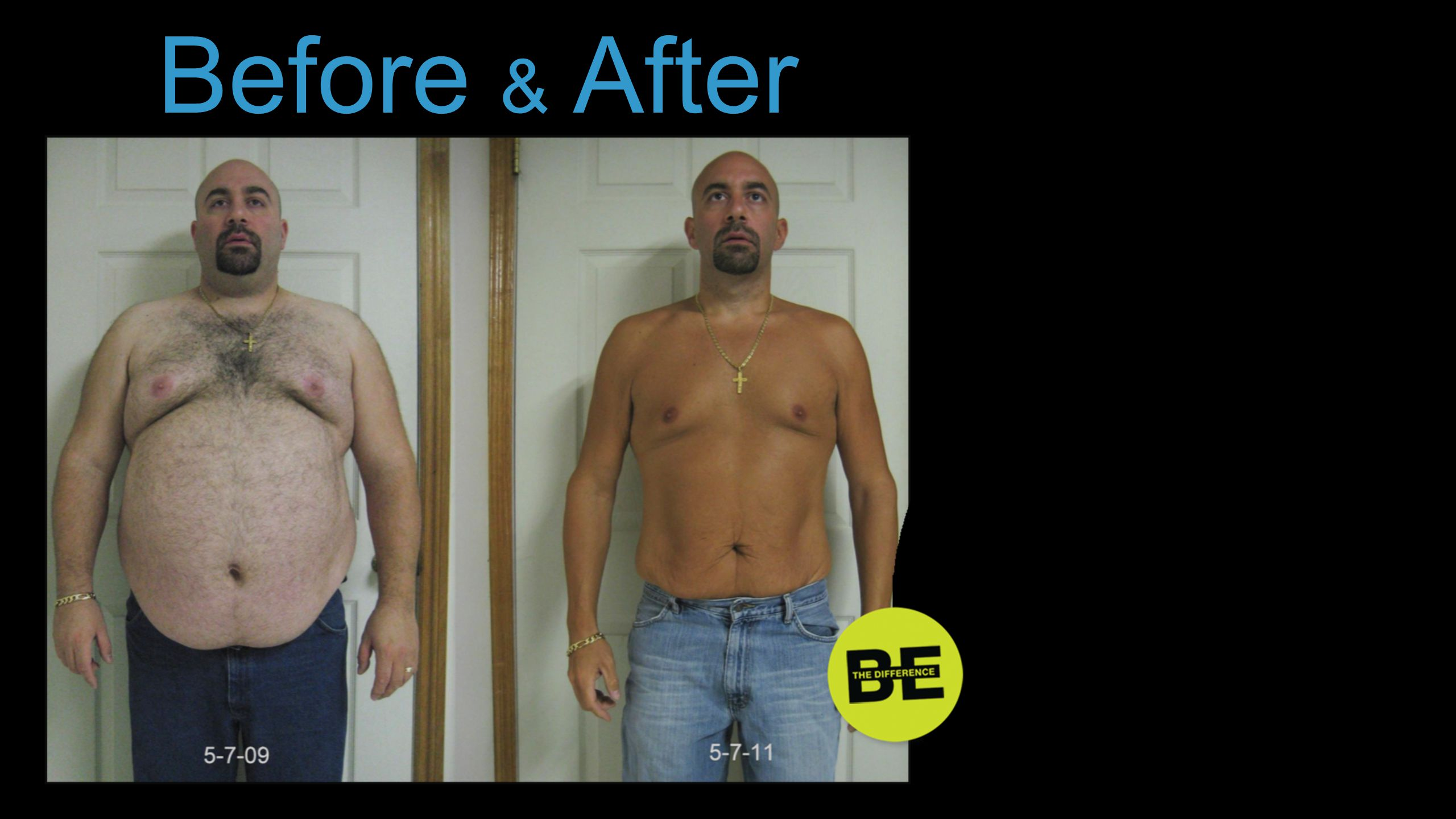 Before & After … or lost weight.