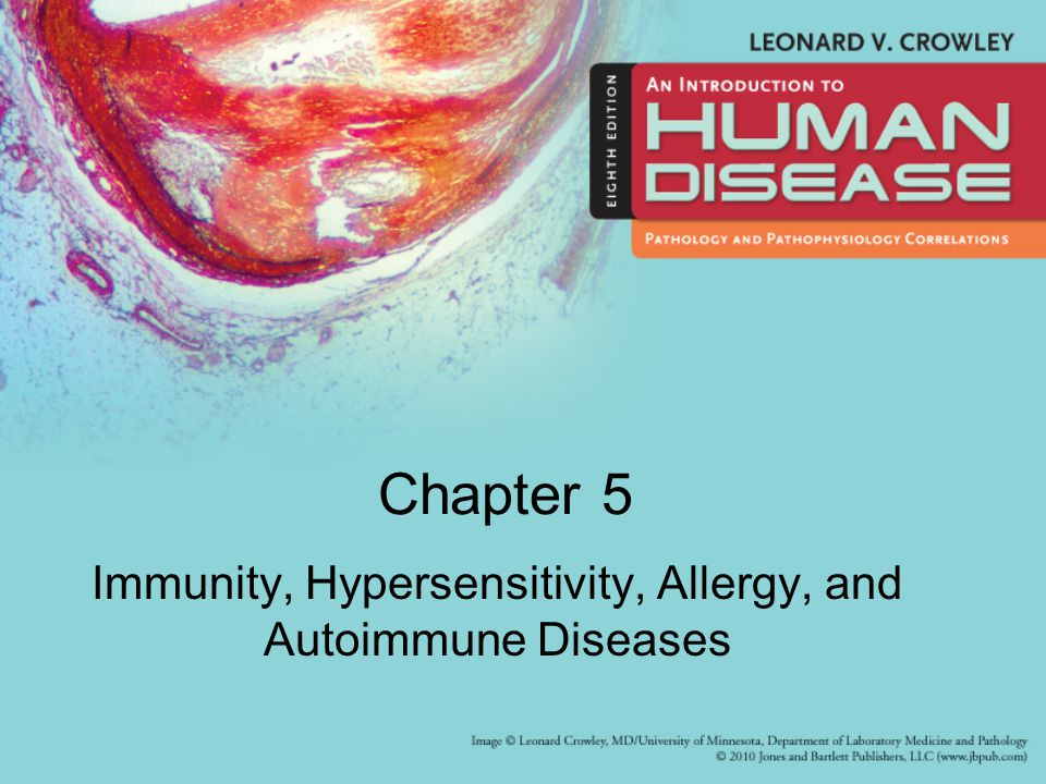 Immunity, Hypersensitivity, Allergy, and Autoimmune Diseases