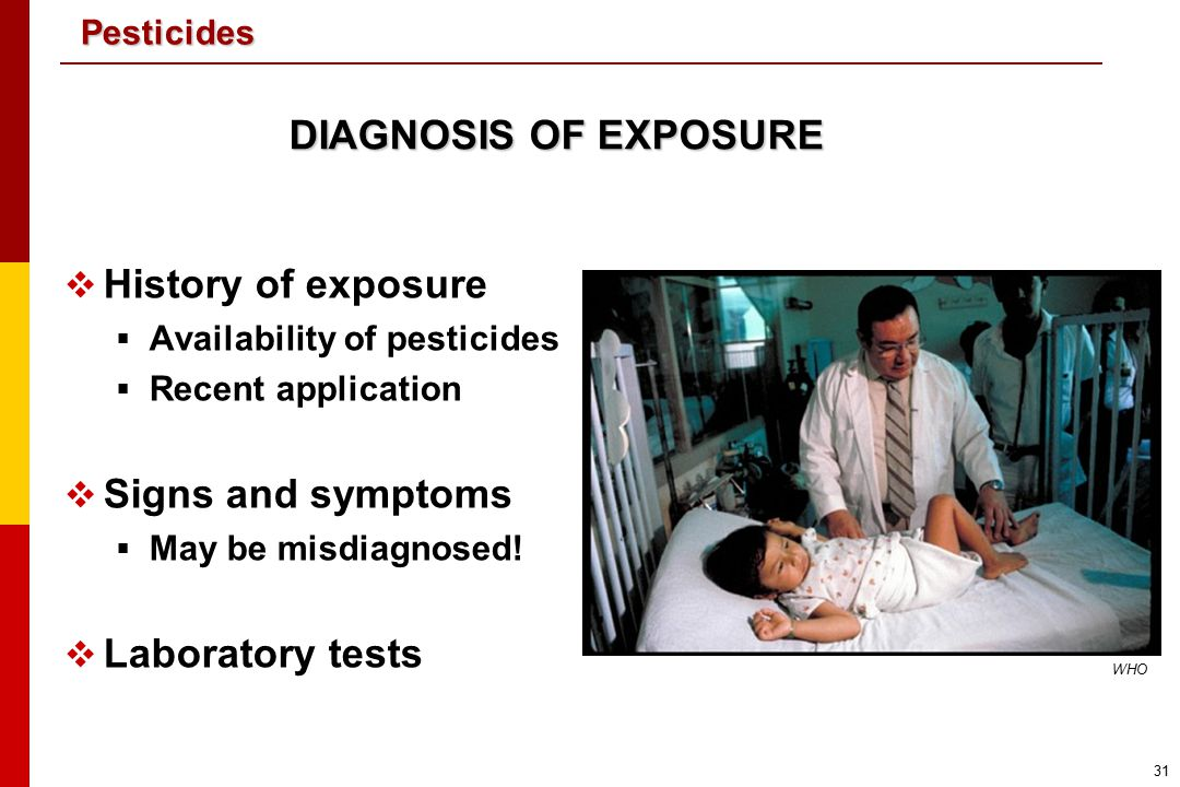 DIAGNOSIS OF EXPOSURE History of exposure Signs and symptoms