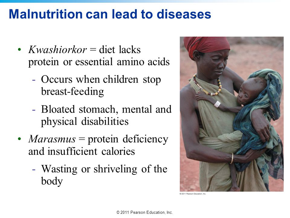 Malnutrition can lead to diseases