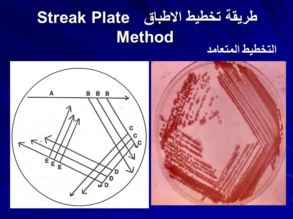 streak plate method lab report