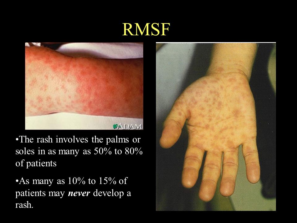 RMSF The rash involves the palms or soles in as many as 50% to 80% of patients.