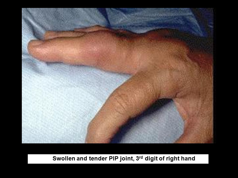Swollen and tender PIP joint, 3rd digit of right hand