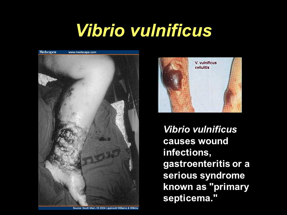 Vibrio vulnificus Vibrio vulnificus causes wound infections, gastroenteritis or a serious syndrome known as primary septicema.