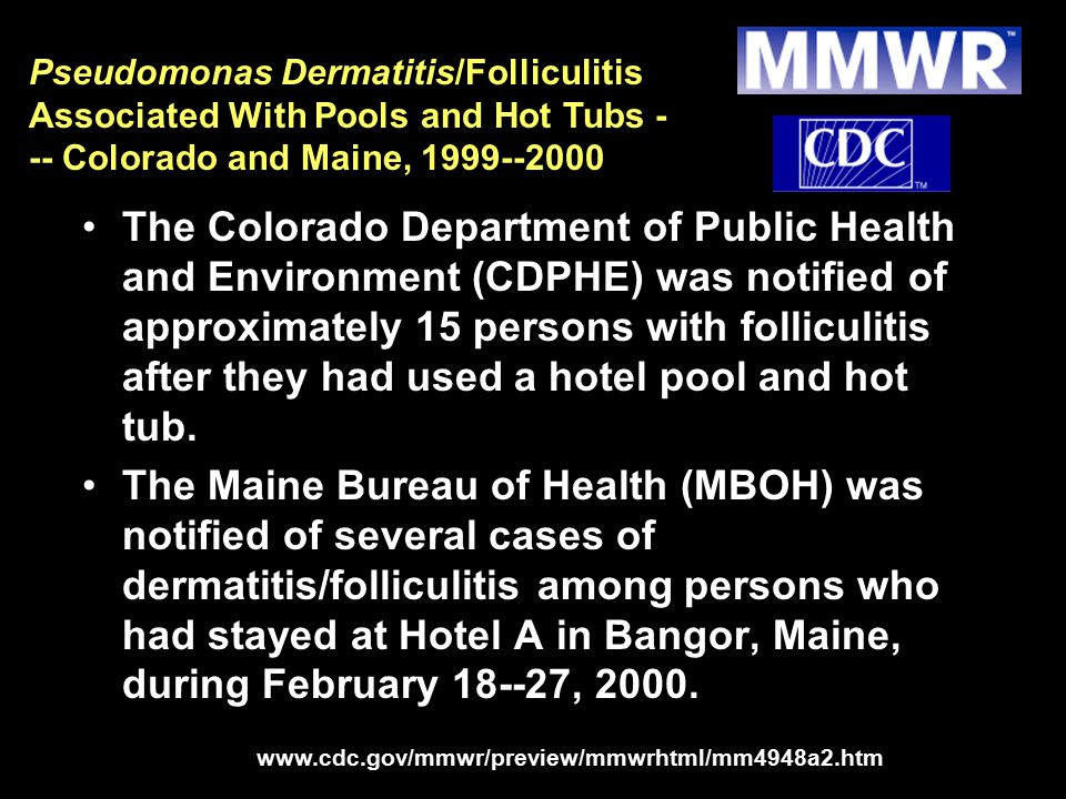 Pseudomonas Dermatitis/Folliculitis Associated With Pools and Hot Tubs --- Colorado and Maine, 1999--2000