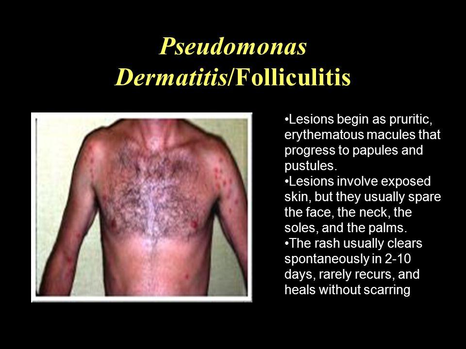 Pseudomonas Dermatitis/Folliculitis