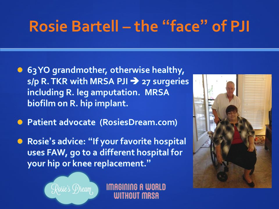 Rosie Bartell – the face of PJI
